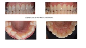 Cosmetic treatment without orthodontics