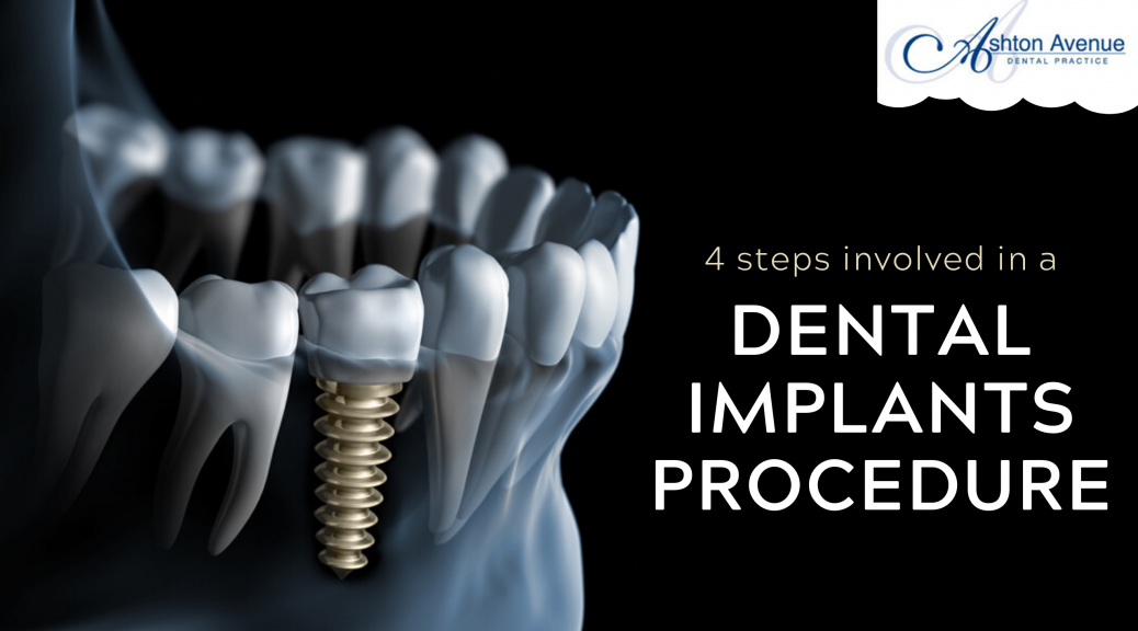Dental Implants Treatment Procedure
