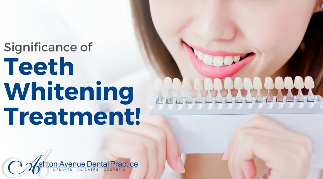 Significance of Teeth Whitening Treatment